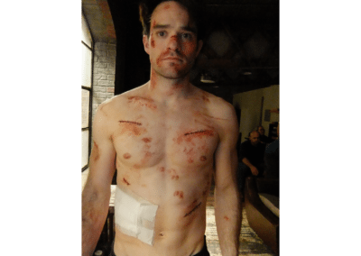 Charlie Cox (Stitches-&-Bruises) - Daredevil (Season 1)